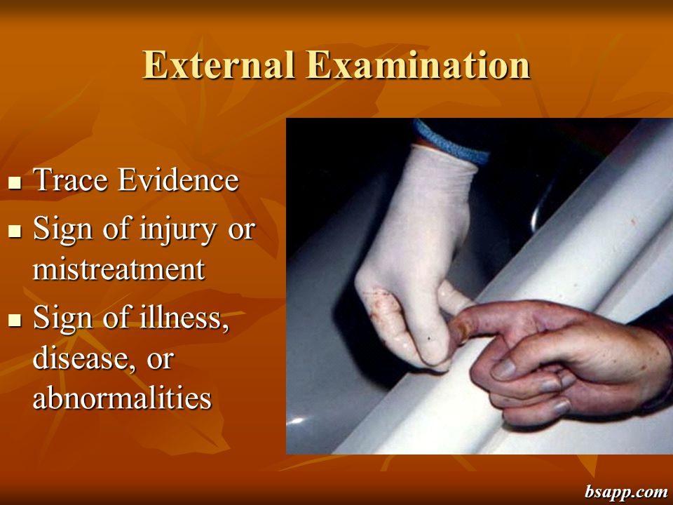 External Examination Trace Evidence Sign of injury or mistreatment