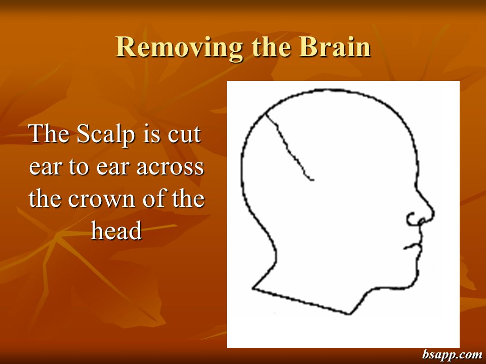 The Scalp is cut ear to ear across the crown of the head
