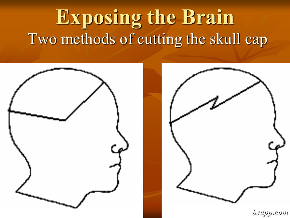 Two methods of cutting the skull cap