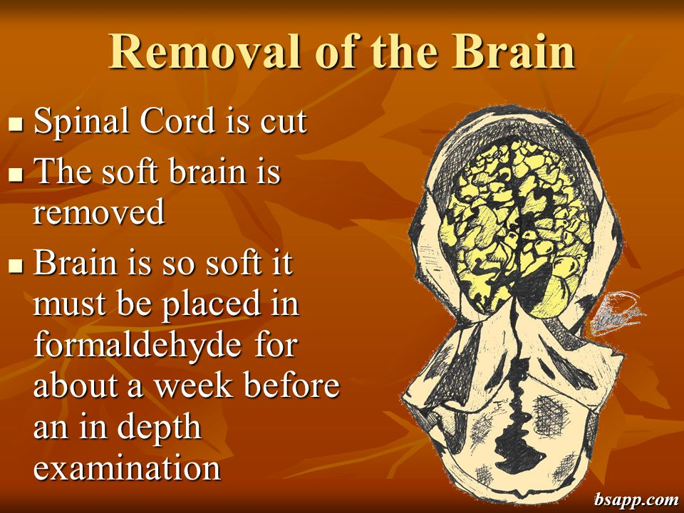 Removal of the Brain Spinal Cord is cut The soft brain is removed