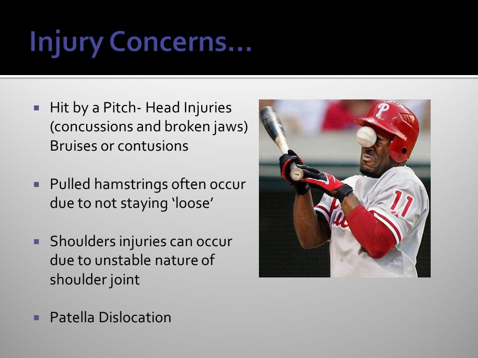 Injury Concerns… Hit by a Pitch- Head Injuries (concussions and broken jaws) Bruises or contusions.