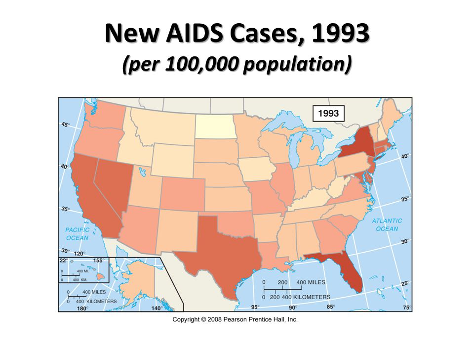 New AIDS Cases, 1993 (per 100,000 population)