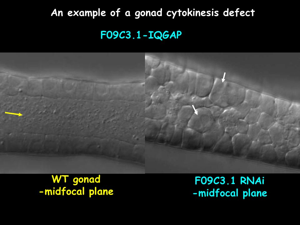 An example of a gonad cytokinesis defect