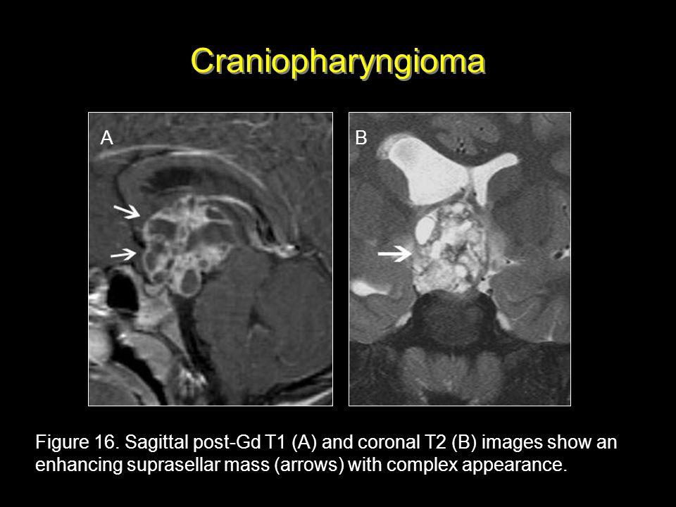 Craniopharyngioma A B.