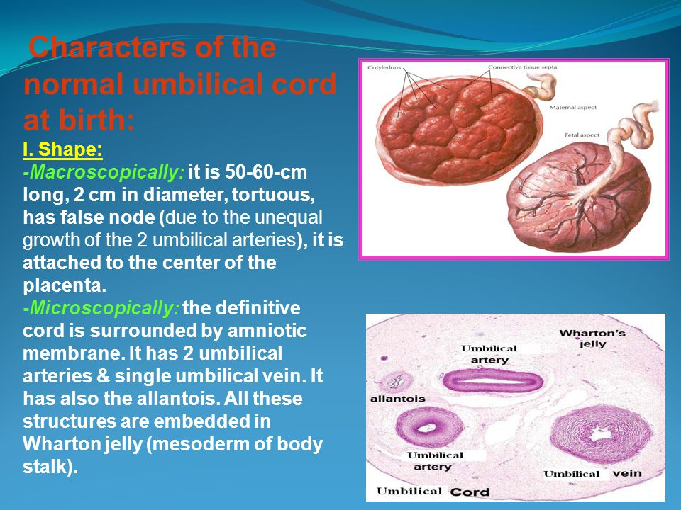 Characters of the normal umbilical cord at birth: