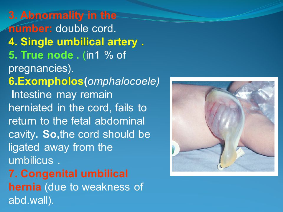 3. Abnormality in the number: double cord.