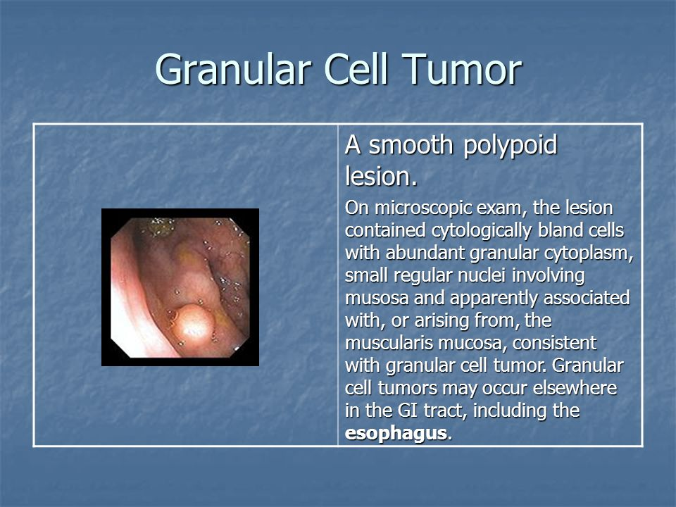 Granular Cell Tumor A smooth polypoid lesion.