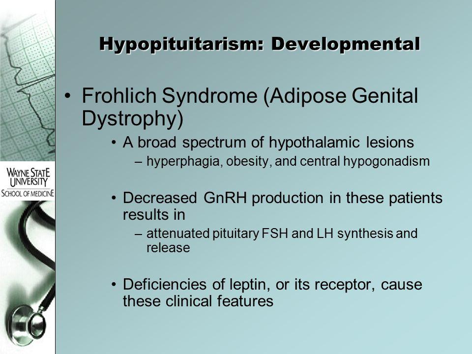 Hypopituitarism: Developmental