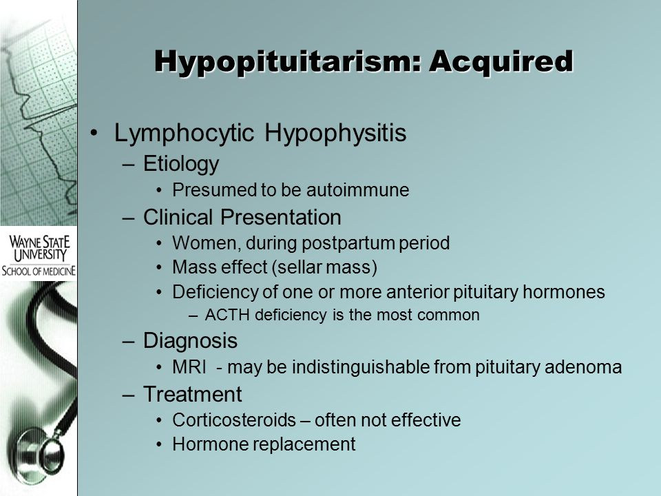 Hypopituitarism: Acquired
