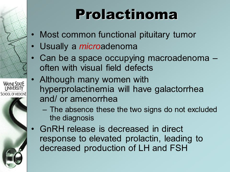Prolactinoma Most common functional pituitary tumor