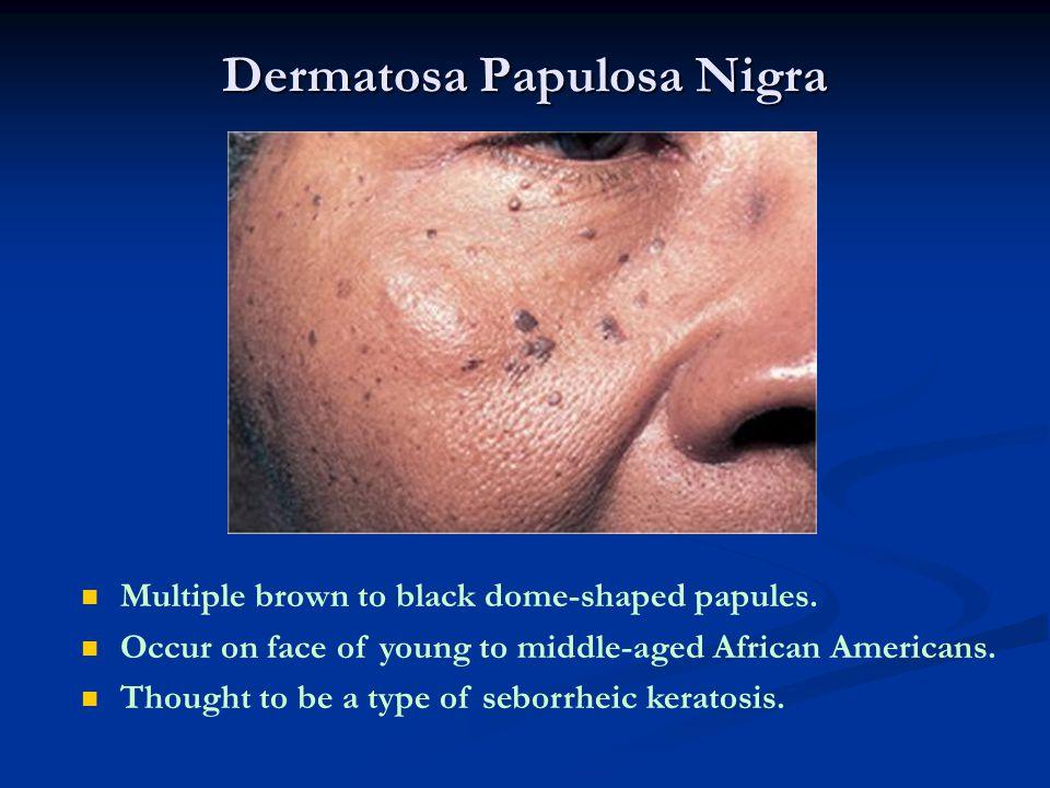 Dermatosa Papulosa Nigra