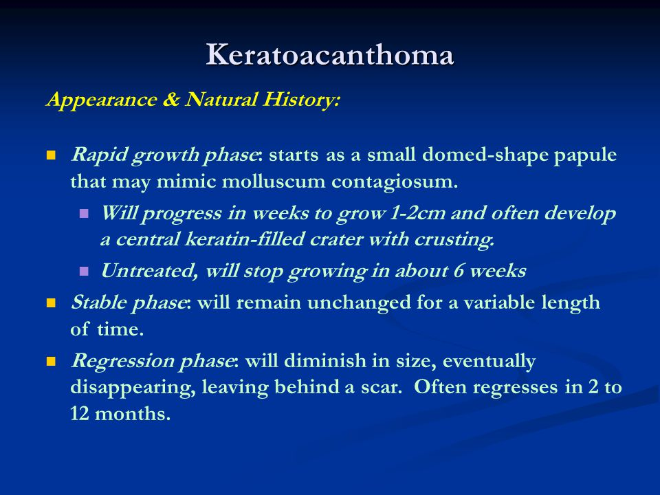 Keratoacanthoma Appearance & Natural History: