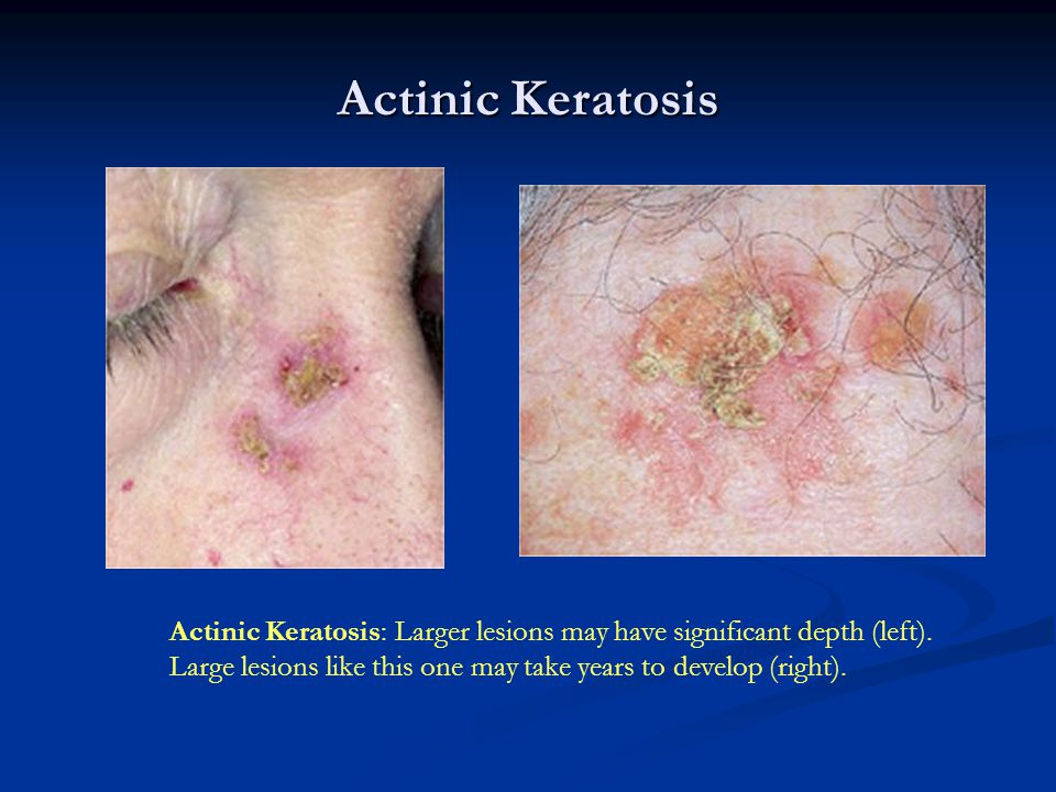 Actinic Keratosis Actinic Keratosis: Larger lesions may have significant depth (left).
