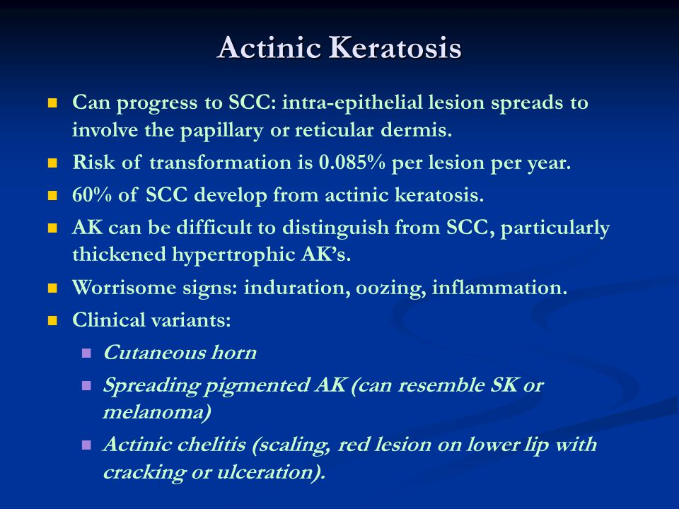 Actinic Keratosis Can progress to SCC: intra-epithelial lesion spreads to involve the papillary or reticular dermis.