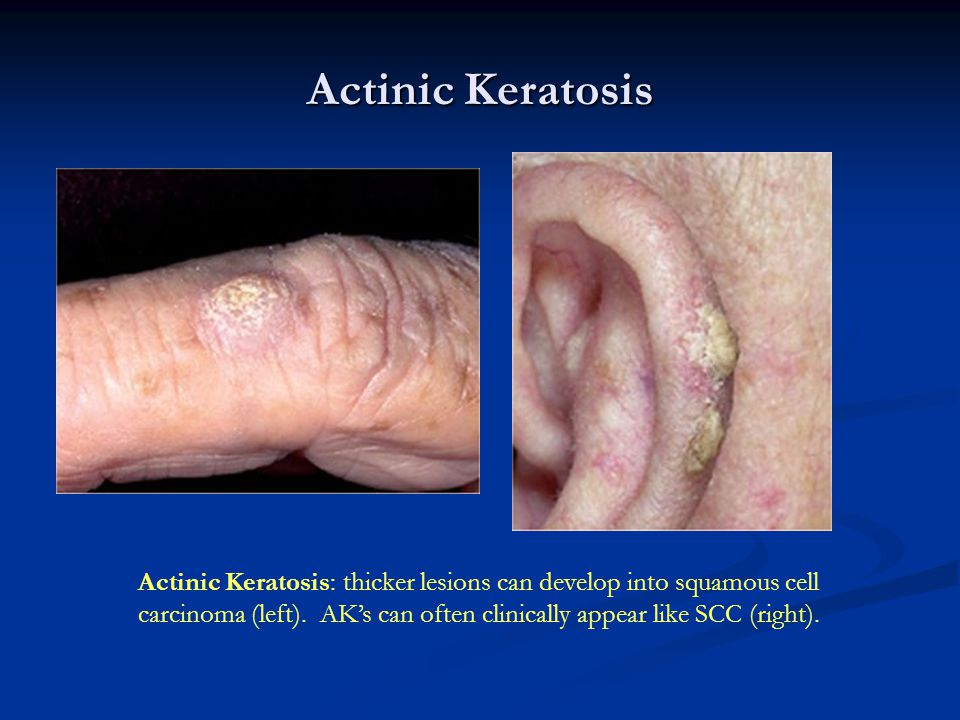 Actinic Keratosis Actinic Keratosis: thicker lesions can develop into squamous cell.