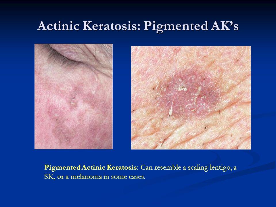 Actinic Keratosis: Pigmented AK's