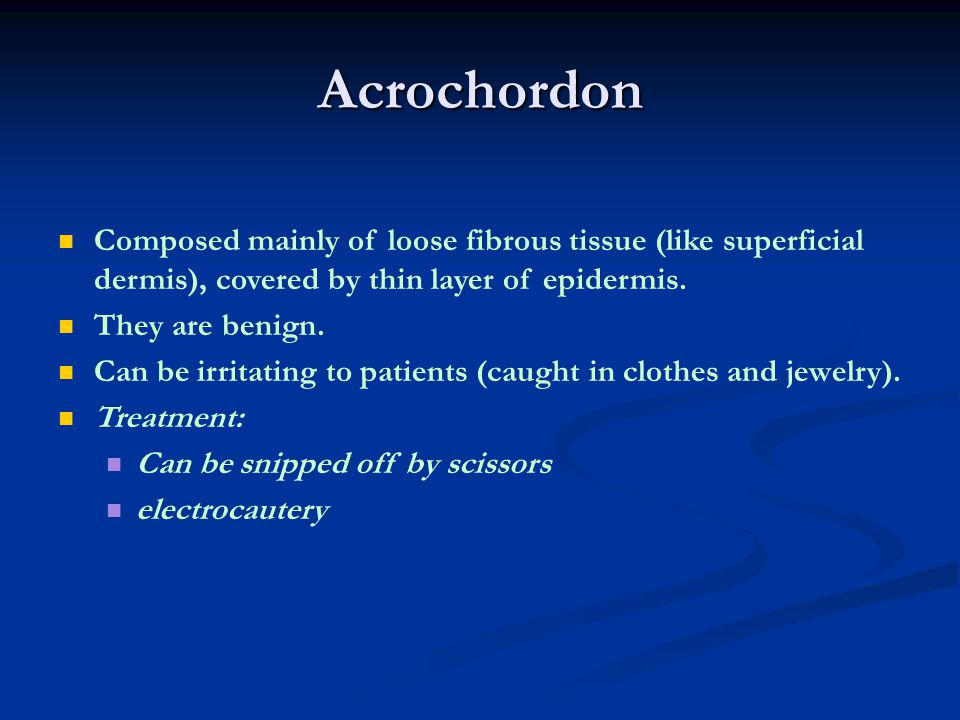 Acrochordon Composed mainly of loose fibrous tissue (like superficial dermis), covered by thin layer of epidermis.