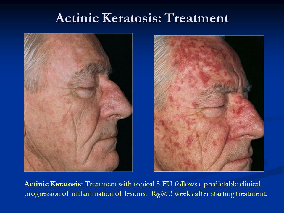 Actinic Keratosis: Treatment