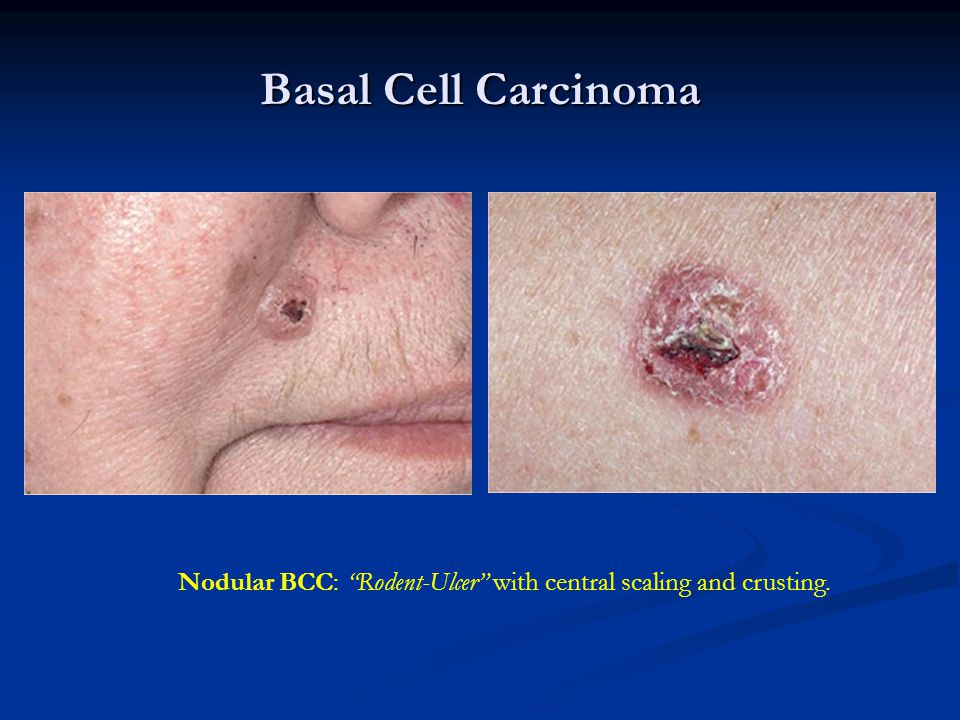 Basal Cell Carcinoma Nodular BCC: Rodent-Ulcer with central scaling and crusting.
