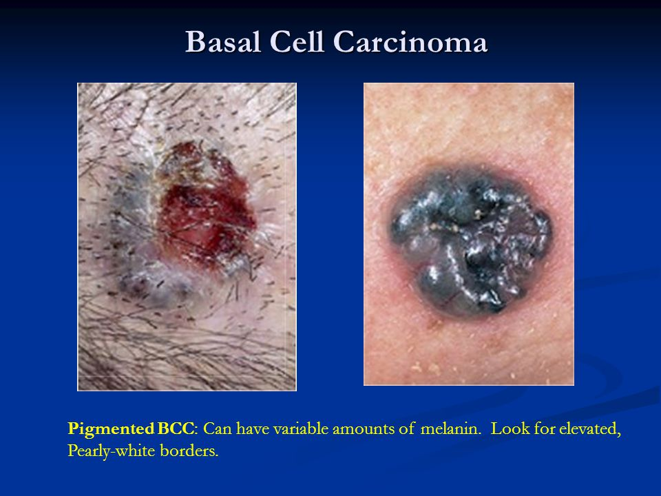 Basal Cell Carcinoma Pigmented BCC: Can have variable amounts of melanin.