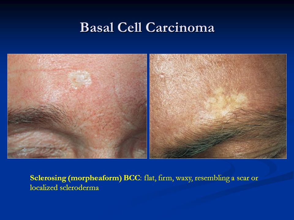 Basal Cell Carcinoma Sclerosing (morpheaform) BCC: flat, firm, waxy, resembling a scar or.