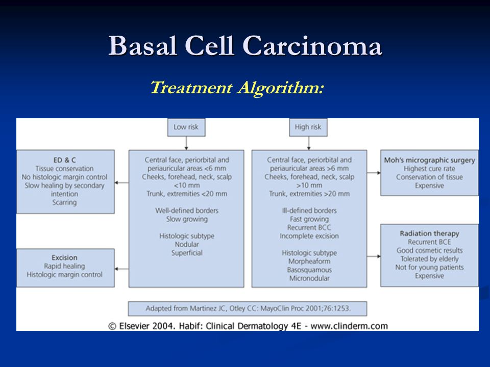Basal Cell Carcinoma Treatment Algorithm: