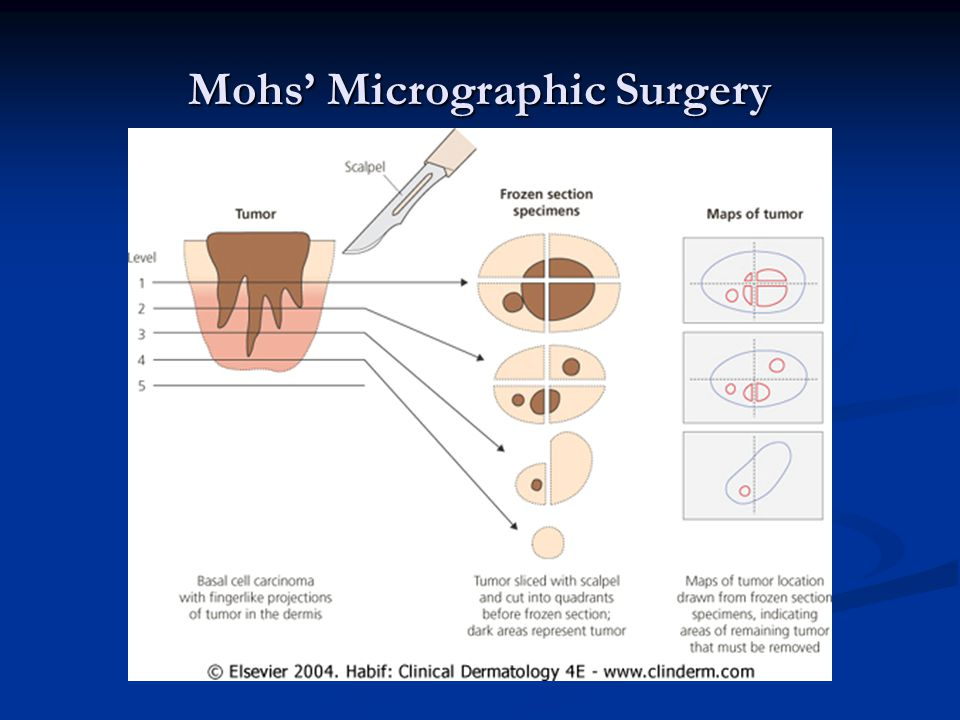 Mohs' Micrographic Surgery