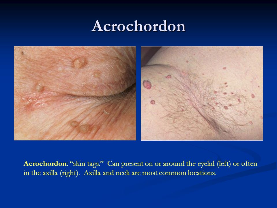 Acrochordon Acrochordon: skin tags. Can present on or around the eyelid (left) or often.