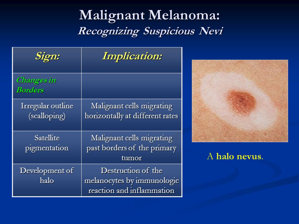 Malignant Melanoma: Recognizing Suspicious Nevi
