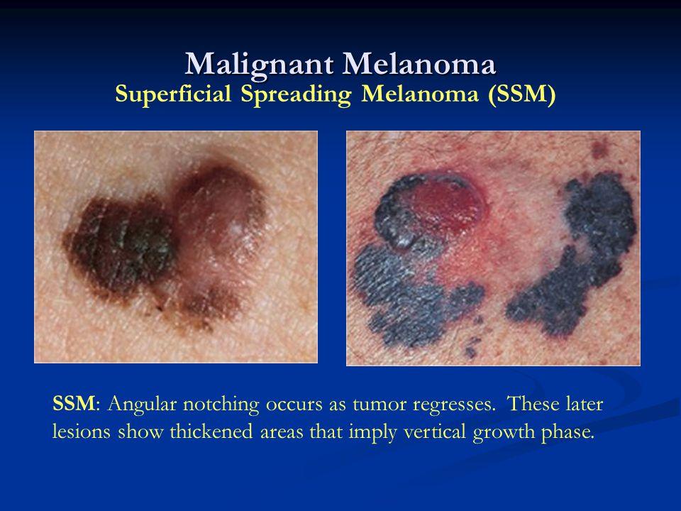 Malignant Melanoma Superficial Spreading Melanoma (SSM)