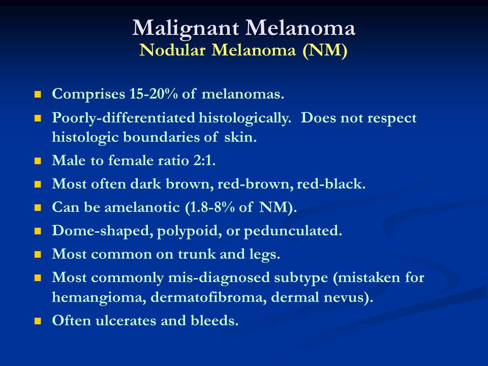 Malignant Melanoma Nodular Melanoma (NM)