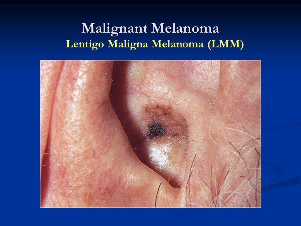 Malignant Melanoma Lentigo Maligna Melanoma (LMM)