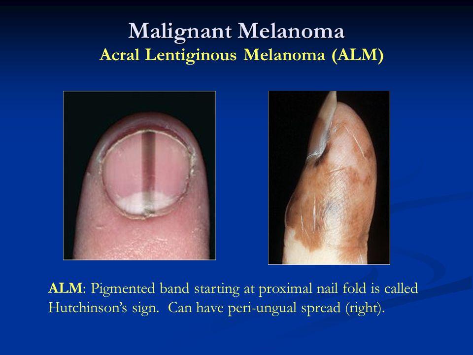 Malignant Melanoma Acral Lentiginous Melanoma (ALM)