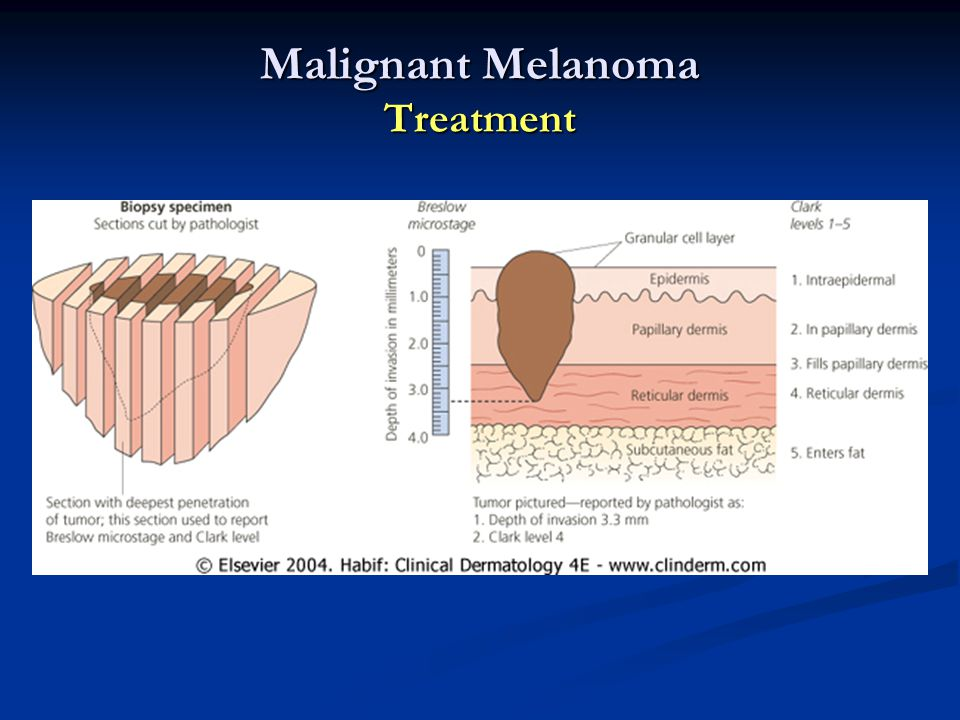 Malignant Melanoma Treatment