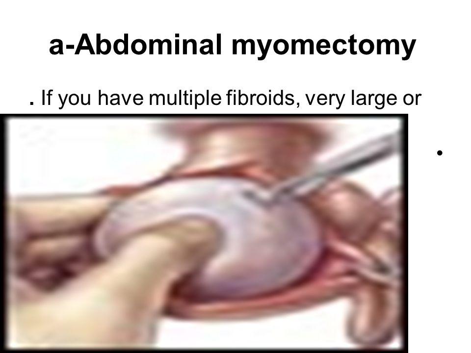 a-Abdominal myomectomy