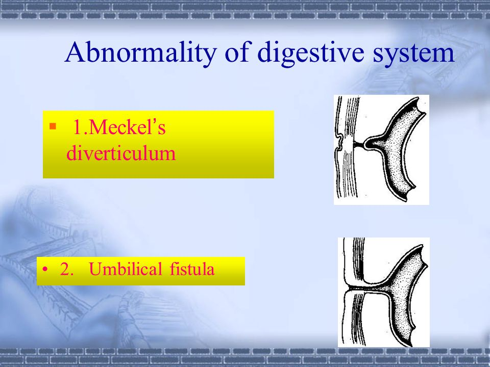 Abnormality of digestive system