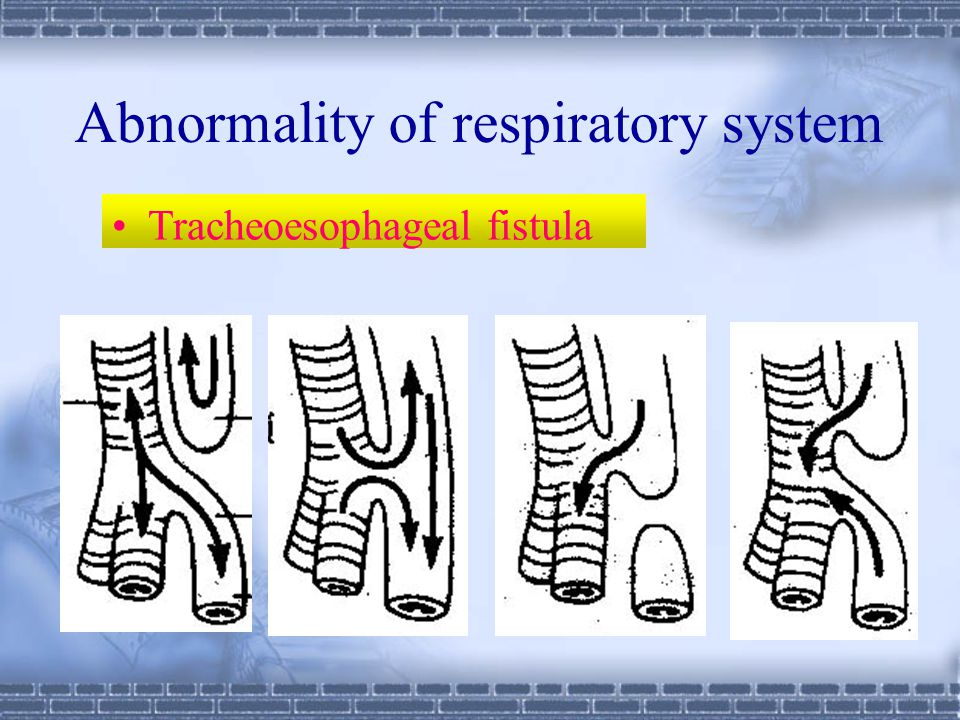 Abnormality of respiratory system