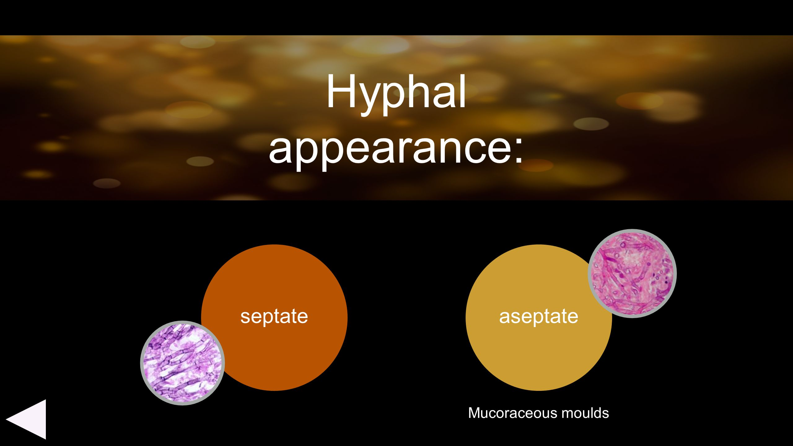 Hyphal appearance: septate aseptate Mucoraceous moulds