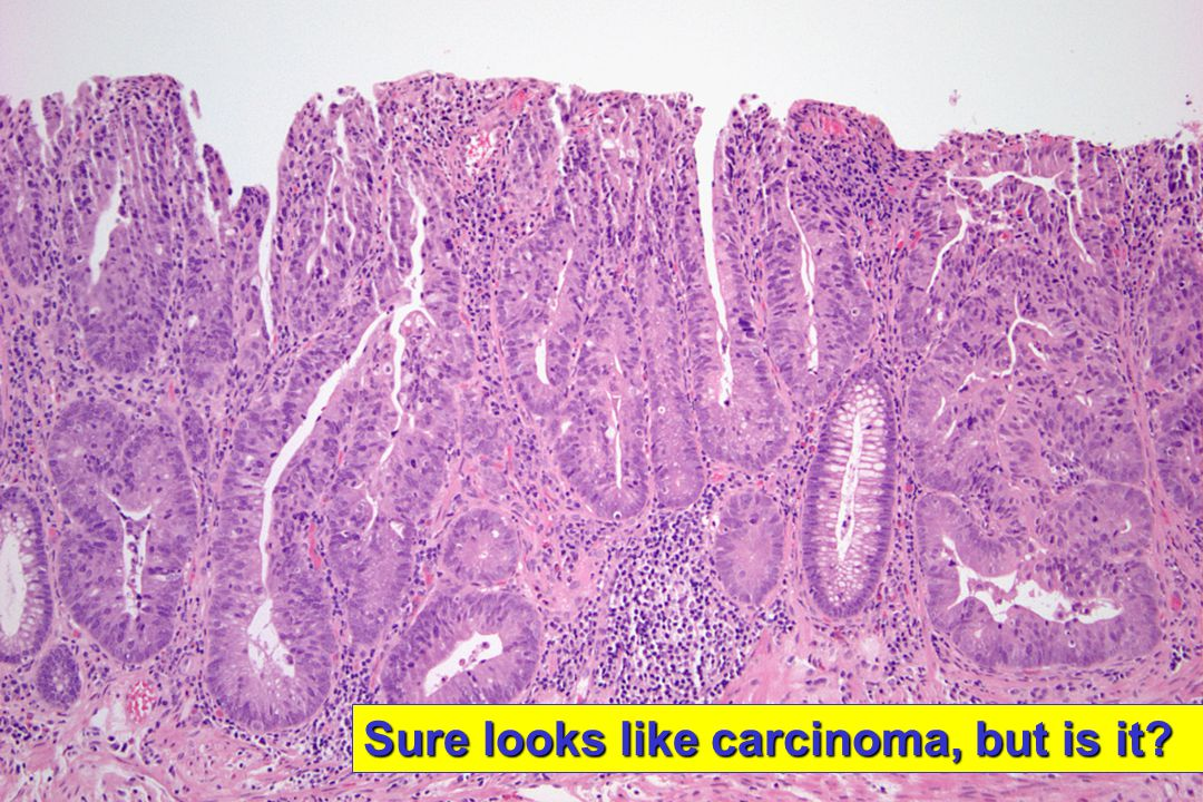 Sure looks like carcinoma, but is it