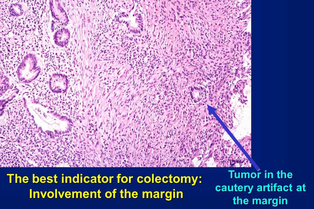 The best indicator for colectomy: Involvement of the margin