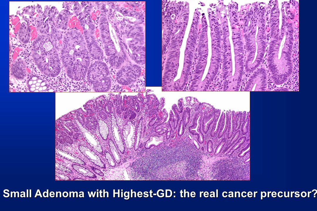 Small Adenoma with Highest-GD: the real cancer precursor