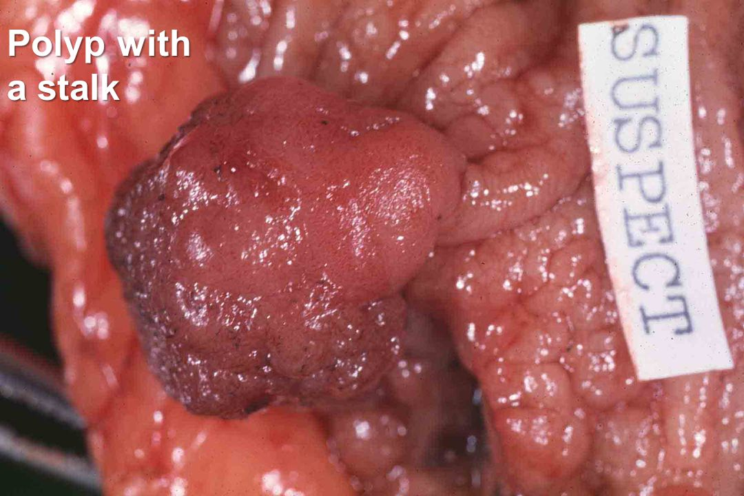 Polyp with a stalk