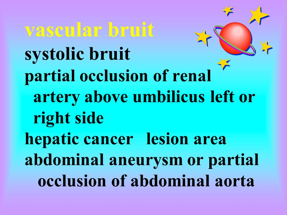 vascular bruit systolic bruit partial occlusion of renal artery above umbilicus left or right side hepatic cancer lesion area abdominal aneurysm or partial occlusion of abdominal aorta