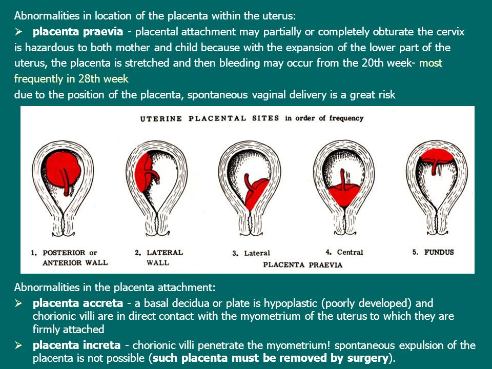 Abnormalities in location of the placenta within the uterus: