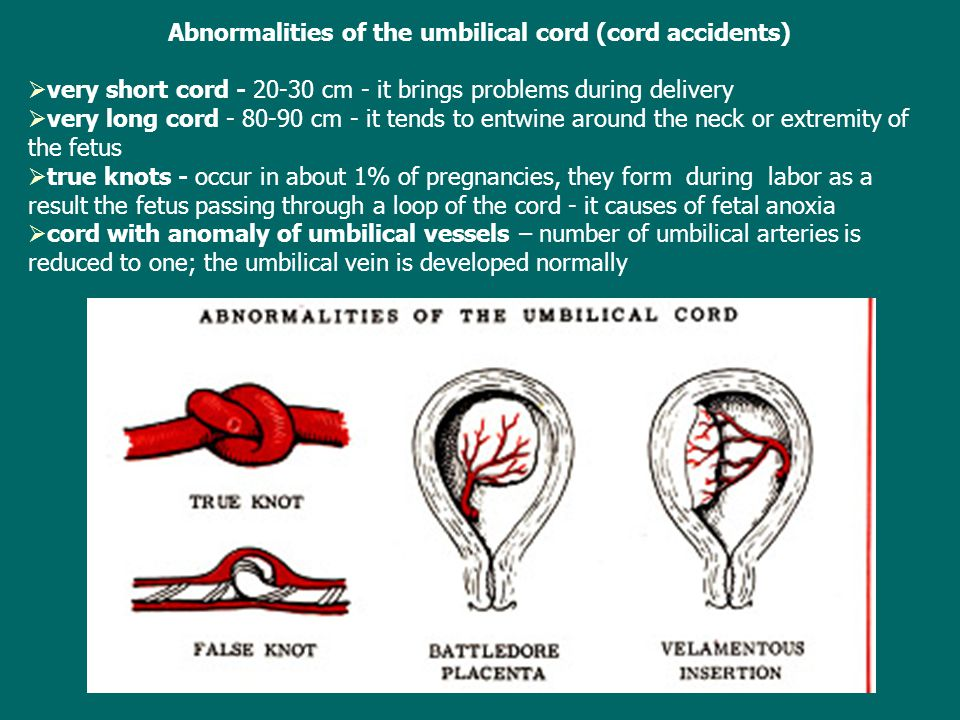 Abnormalities of the umbilical cord (cord accidents)