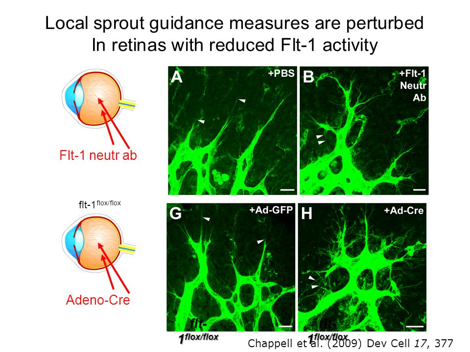 Local sprout guidance measures are perturbed In retinas with reduced Flt-1 activity