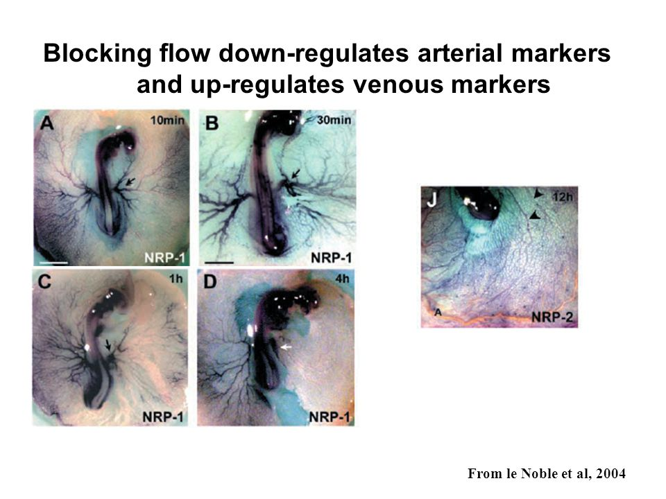 Blocking flow down-regulates arterial markers and up-regulates venous markers