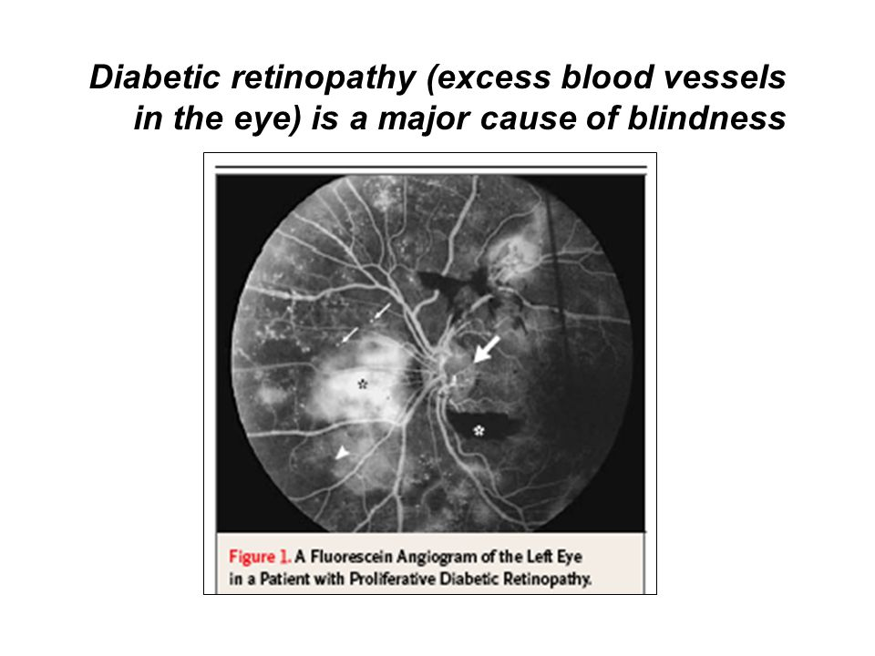 Diabetic retinopathy (excess blood vessels in the eye) is a major cause of blindness