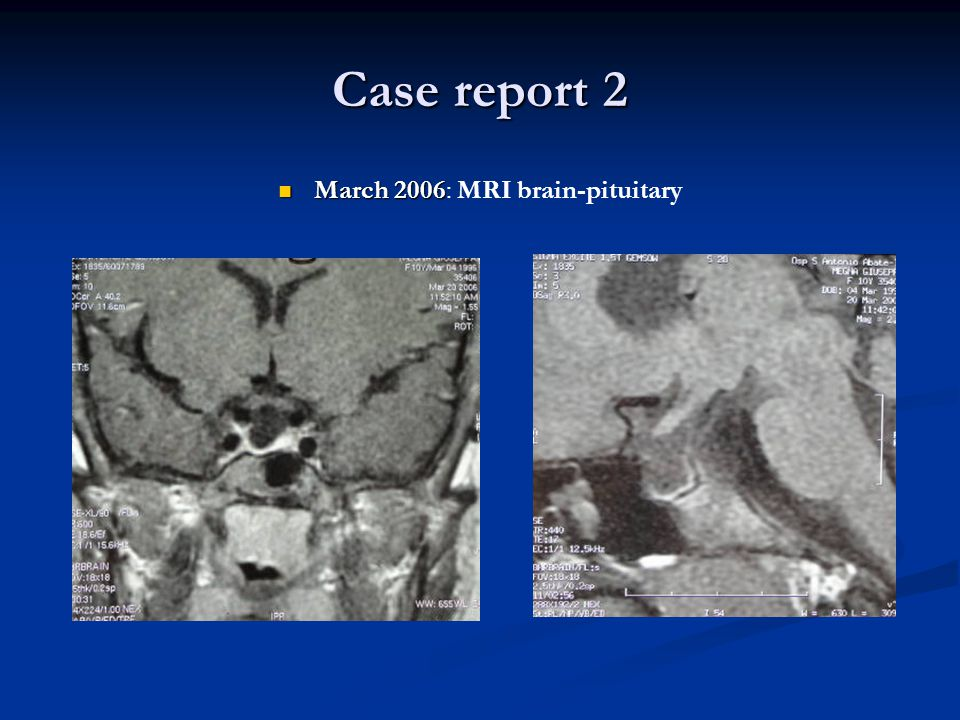 March 2006: MRI brain-pituitary