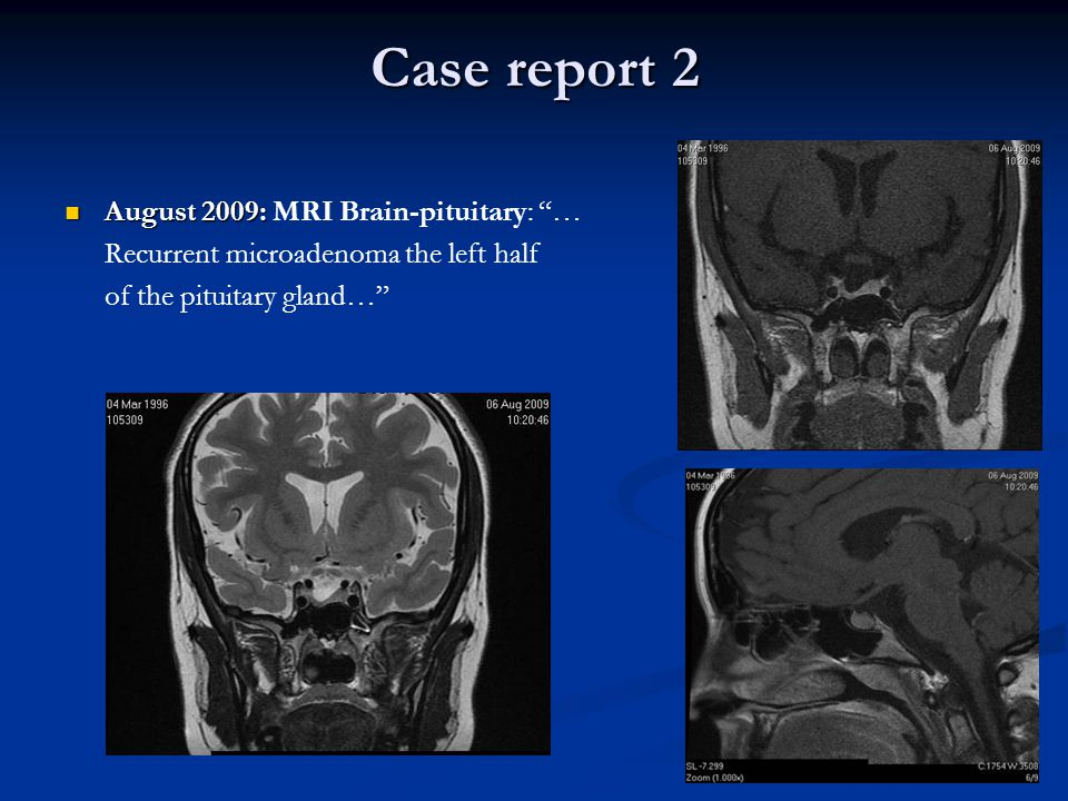 Case report 2 August 2009: MRI Brain-pituitary: …